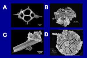 A few examples of microfossils found in the Greenland ice core. (Image: Dallas Abbott/LDEO)